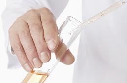 尿検査のイメージ